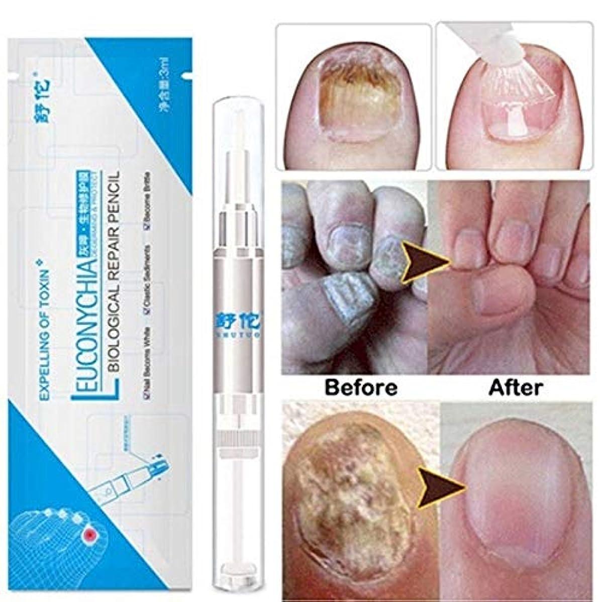 形式会計士雪zhongxinze 足の爪の真菌治療真菌の止め釘の真菌、抗真菌の足指の爪および指の解決に対して有効な最高の強度の抗真菌の爪の解決 3ml