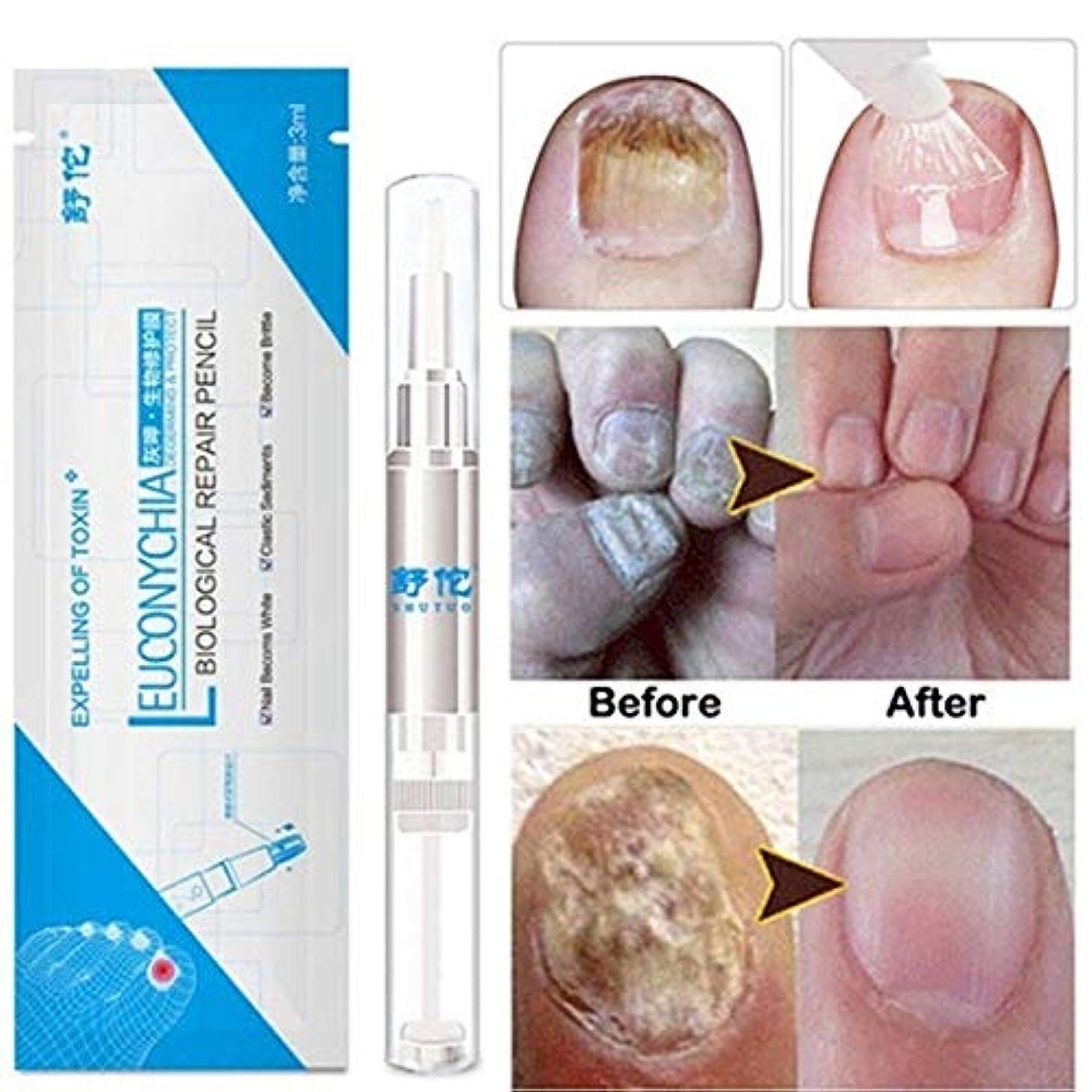 パイ更新するホストzhongxinze 足の爪の真菌治療真菌の止め釘の真菌、抗真菌の足指の爪および指の解決に対して有効な最高の強度の抗真菌の爪の解決 3ml