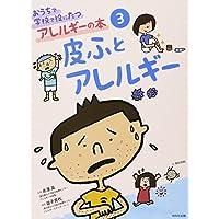 おうちで学校で役にたつアレルギーの本〈3〉皮ふとアレルギー (おうちで学校で役にたつアレルギーの本 3)
