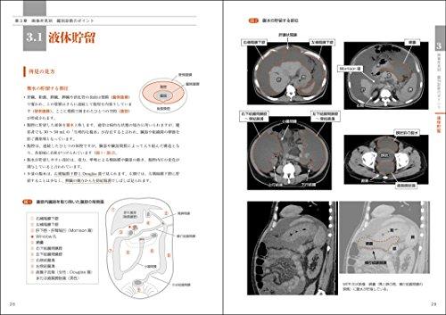 レジデントのための腹部画像教室