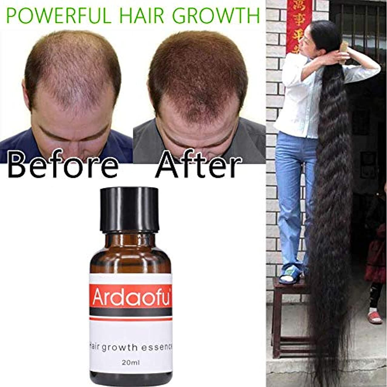 是正する習熟度スラム強力な育毛エッセンスアンチトリート脱毛オイル液体高密度血清スプレーケラチントリートメントケア製品用女性男性20ミリリットル