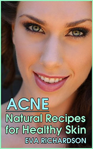 Acne: Natural Recipes for Heal...