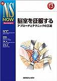 脳室を征服する (新NS NOW 13)