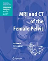 MRI and CT of the Female Pelvis (Medical Radiology) by Unknown(2010-11-04)