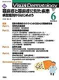 Visual Dermatology Vol.20 No.6 特集:『蕁麻疹と蕁麻疹に似た疾患 ─病型鑑別からはじめよう』 (ヴィジュアルダーマトロジー)