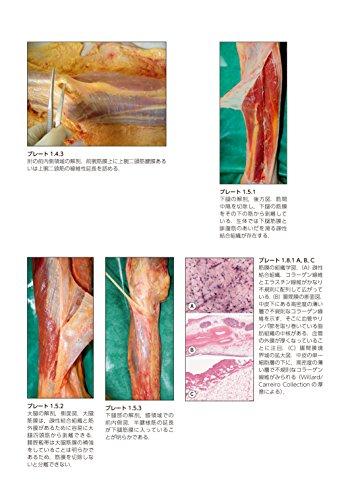 人体の張力ネットワーク 膜・筋膜―最新知見と治療アプローチ
