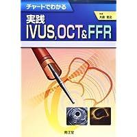 チャートでわかる実践IVUS,OCT & FFR