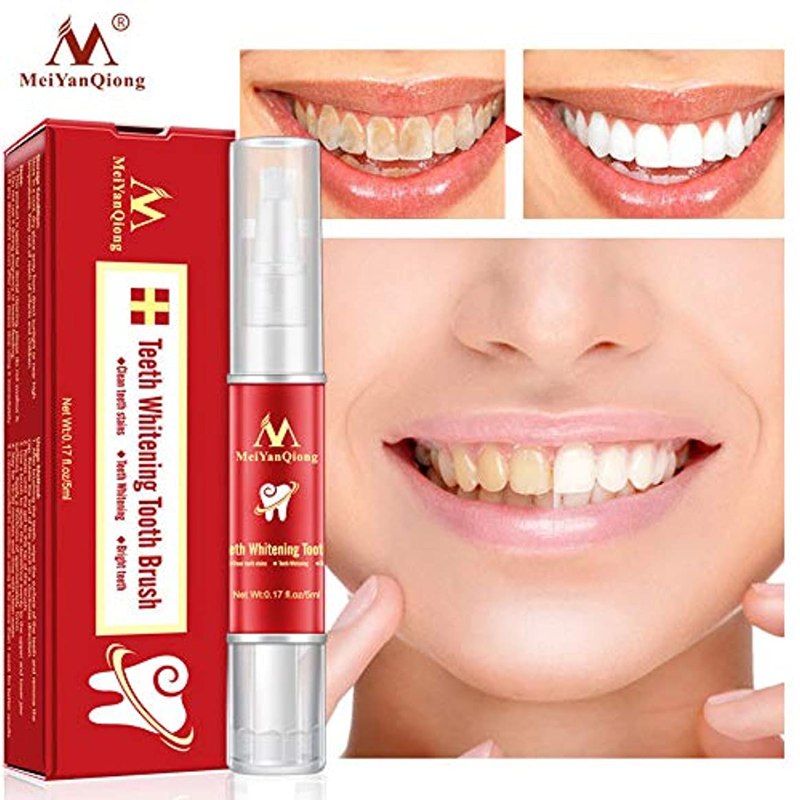 5ml 歯牙 美白ジェル 汚れ取り 黄ばみや歯垢落とし ばこのヤニ、ステイン除去 ホワイトニングジェル