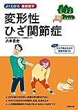 変形性ひざ関節症 (よくわかる最新医学シリーズ)