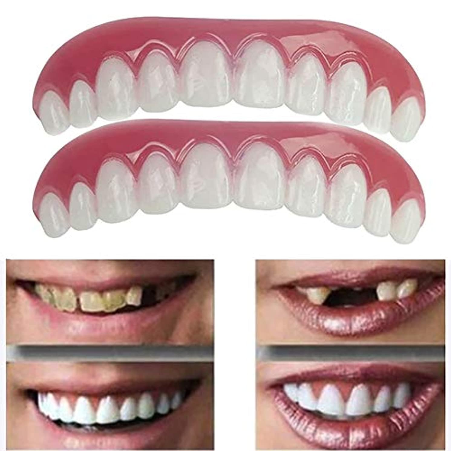 レンダリングメモお勧め5ペア偽の歯上偽の歯のカバー安全なインスタント笑顔化粧品ノベルティ歯 - ワンサイズ最もフィット