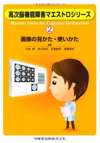 高次脳機能障害マエストロシリーズ(2)画像の見かた・使いかた