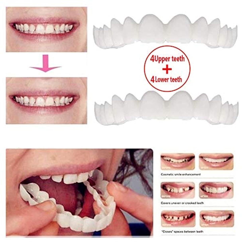 かご考慮ボイド上歯4本+下歯4本、化粧歯、仮歯ベニアブレース