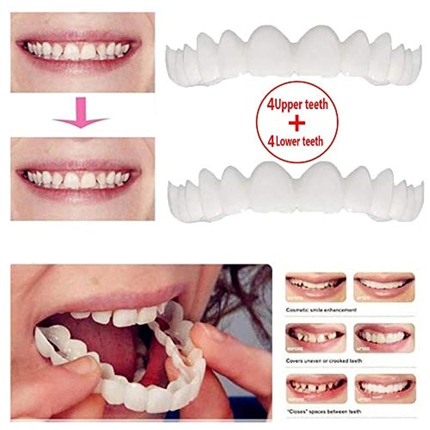 化粧穿孔する赤上歯4本+下歯4本、化粧歯、仮歯ベニアブレース