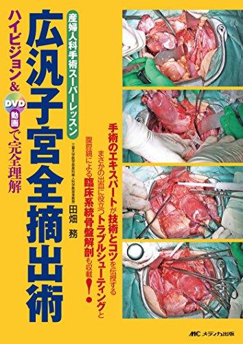 広汎子宮全摘出術: 産婦人科手術スーパーレッスン/ハイビジョン&DVD動画で完全理解