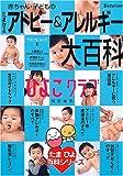 たまひよ赤ちゃん・子どものアトピー&アレルギー大百科―ひよこクラブ (ベネッセ・ムック―たまひよブックス)