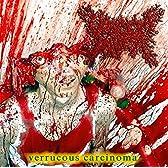 Verrucous Carcinoma
