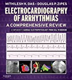 Electrocardiography of Arrhythmias: A Comprehensive Review E-Book: A Companion to Cardiac Electrophysiology (English Edition) 画像