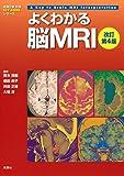 よくわかる脳MRI 改訂第4版 (画像診断別冊KEY BOOKシリーズ)