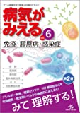 病気がみえる vol.6 免疫・膠原病・感染症