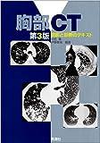 胸部CT―読影と診断のテキスト