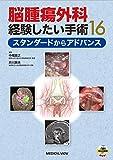 脳腫瘍外科 経験したい手術16−スタンダードからアドバンス