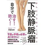 下肢静脈瘤 自分で治す! 防ぐ!