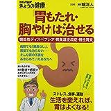 「胃もたれ・胸やけ」は治せる 機能性ディスペプシア・胃食道逆流症・慢性胃炎 (別冊NHKきょうの健康)