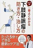 一番よくわかる タイプ別 下肢静脈瘤の防ぎ方・治し方