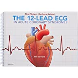 The 12-Lead ECG in Acute Coronary Syndromes