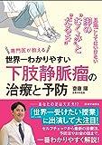 """世界一わかりやすい""""下肢静脈瘤""""の治療と予防: 見過ごしてはいけない脚の""""むくみ""""と""""だるさ"""" (医学通信社BOOKS)"""