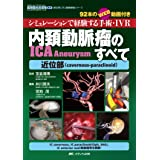内頚動脈瘤(ICA Aneurysm)のすべて-近位部(cavernous-paraclinoid): シミュレーションで経験する手術・IVR/92本のWEB動画付き (脳神経外科速報EX部位別に学ぶ脳動脈瘤シリーズ)