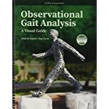 Observational Gait Analysis: A Visual Guide